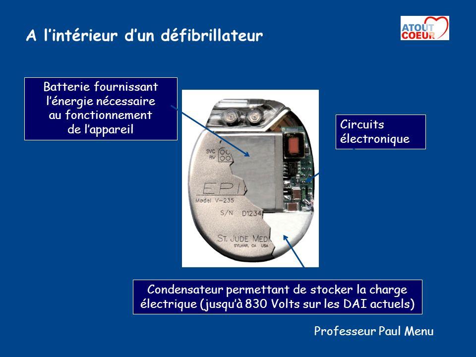 Lautre Élément essentiel : la sonde Connecteurs permettant la liaison avec le DAI Électrodes de défibrillation : Simple coil : une seule électrode VD Double coil : plus une électrode VCS Fixation à vis Fixation à barbes Détection des signaux électriques cardiaques et Stimulation Professeur Paul Menu