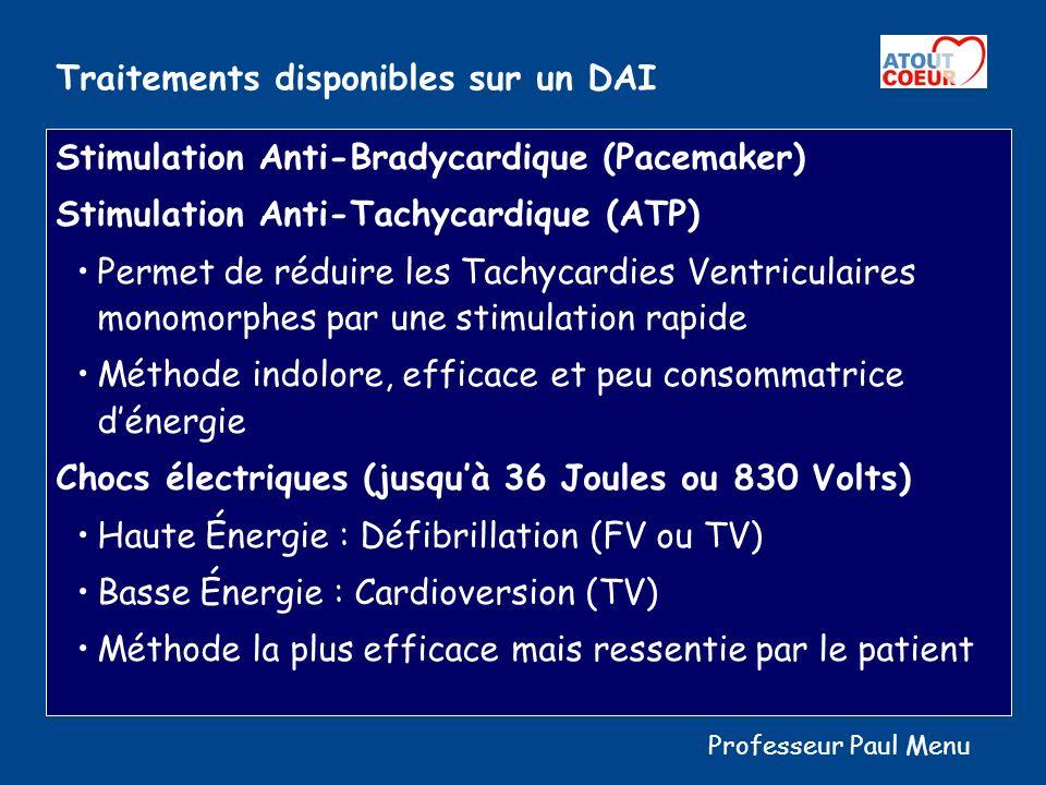 Cascade Thérapeutique En cas de Bradycardie Stimulation anti-Bradycardique (Pacemaker) En cas de Tachycardies Ventriculaires (TV) Stimulation Anti-Tachycardique ou ATP Puis de 1 à 4 Chocs de Défibrillation En cas de Fibrillations Ventriculaires (FV) De 1 à 6 Chocs Haute Energie Professeur Paul Menu
