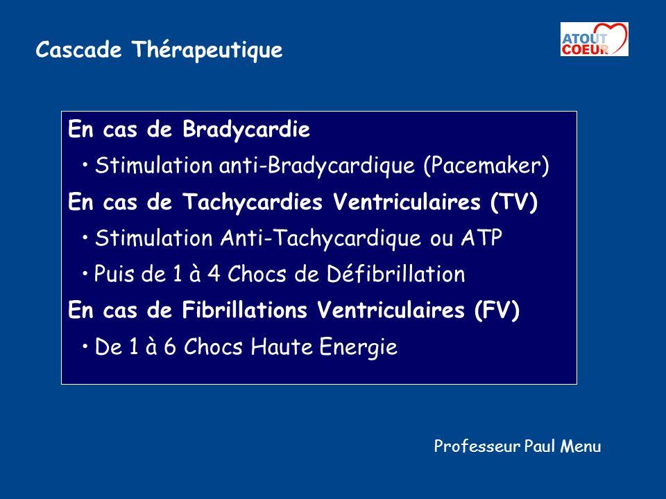Cascade Thérapeutique En cas de Bradycardie Stimulation anti-Bradycardique (Pacemaker) En cas de Tachycardies Ventriculaires (TV) Stimulation Anti-Tac