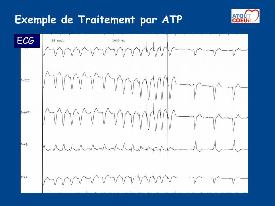 Exemple de Traitement par ATP Détection par lappareil dune TV Confirmation par lappareil du retour en rythme sinusal Thérapie ATP Signaux électriques de loreillette Signaux électriques du ventricule Electrogramme Endocavitaire du DAI