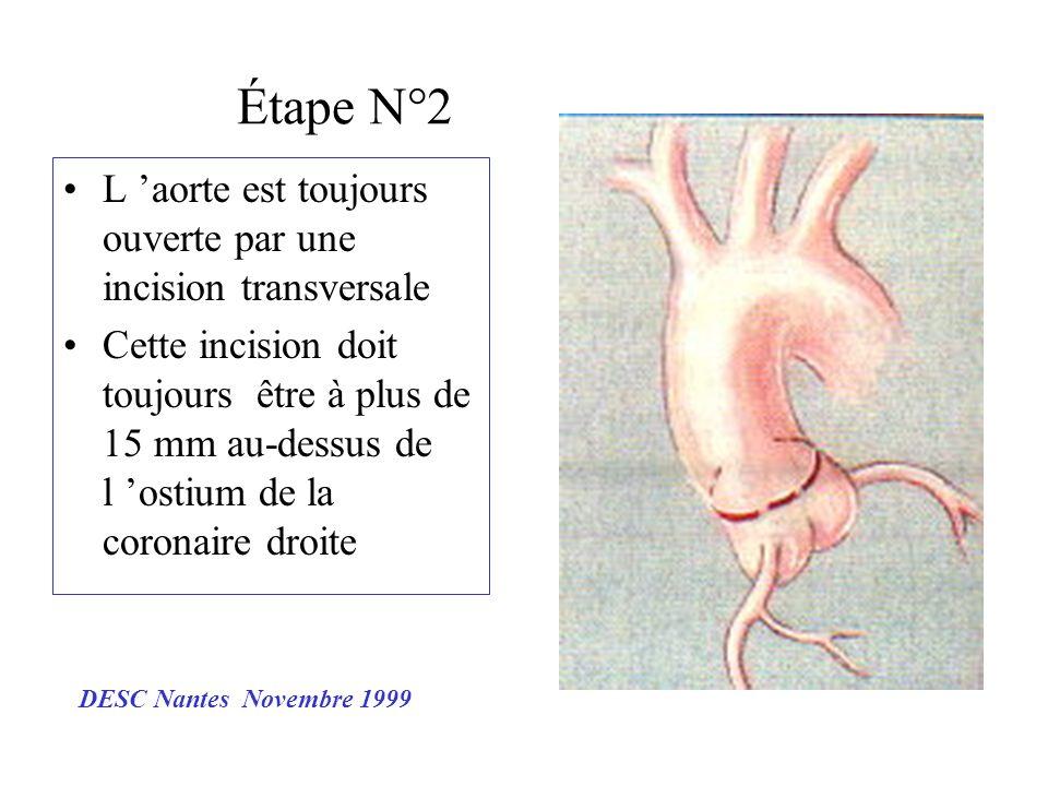 Étape N°2 L aorte est toujours ouverte par une incision transversale Cette incision doit toujours être à plus de 15 mm au-dessus de l ostium de la cor