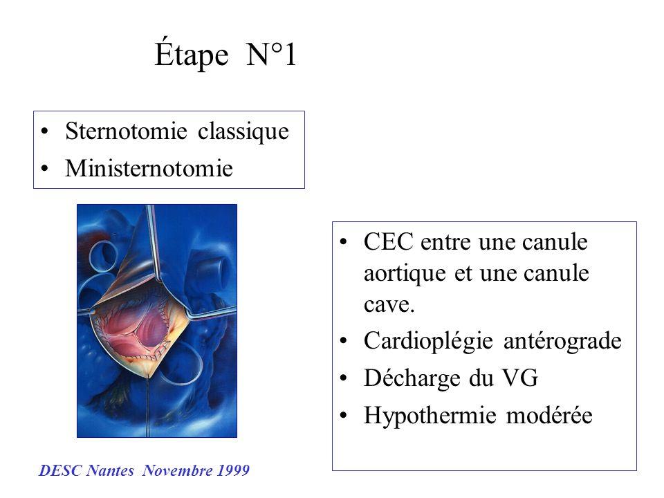 Étape N°1 CEC entre une canule aortique et une canule cave. Cardioplégie antérograde Décharge du VG Hypothermie modérée Sternotomie classique Minister