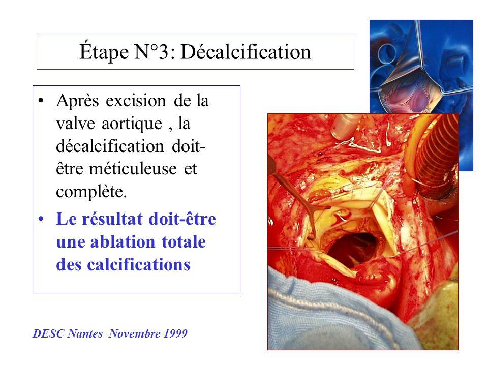 Étape N°3: Décalcification Après excision de la valve aortique, la décalcification doit- être méticuleuse et complète. Le résultat doit-être une ablat