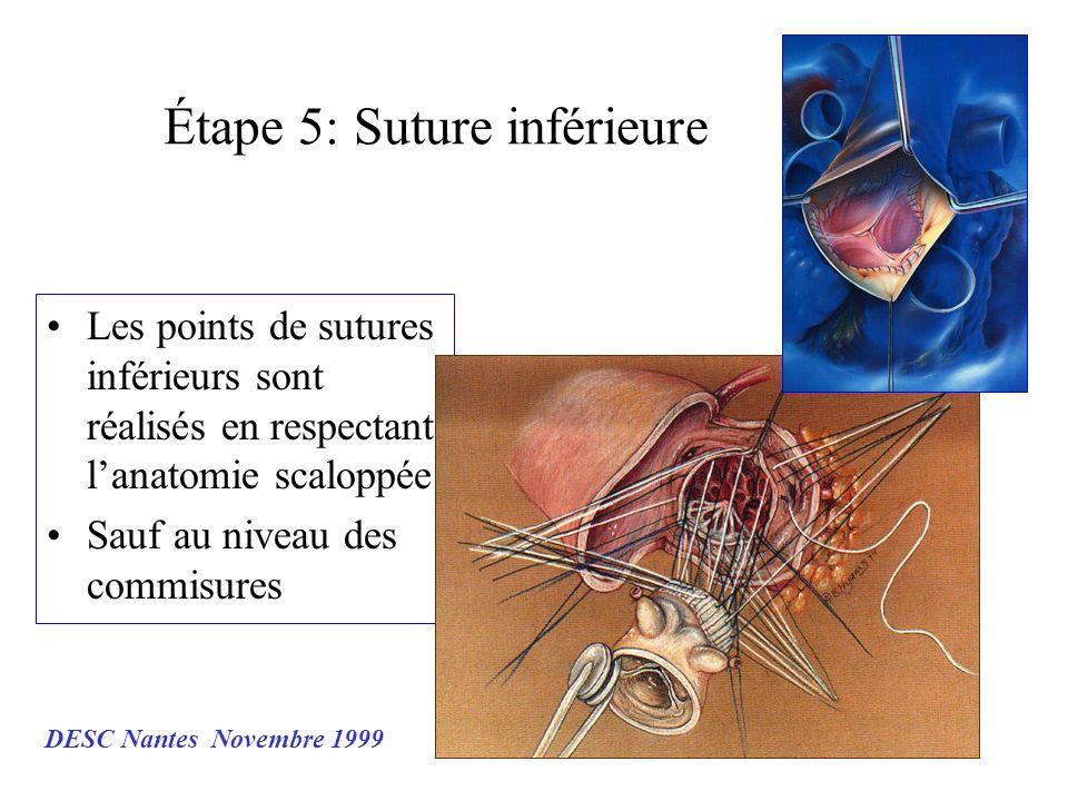 Étape 5: Suture inférieure Les points de sutures inférieurs sont réalisés en respectant lanatomie scaloppée Sauf au niveau des commisures DESC Nantes