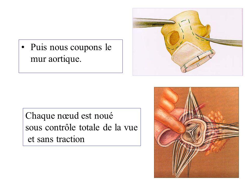 Puis nous coupons le mur aortique. Chaque nœud est noué sous contrôle totale de la vue et sans traction