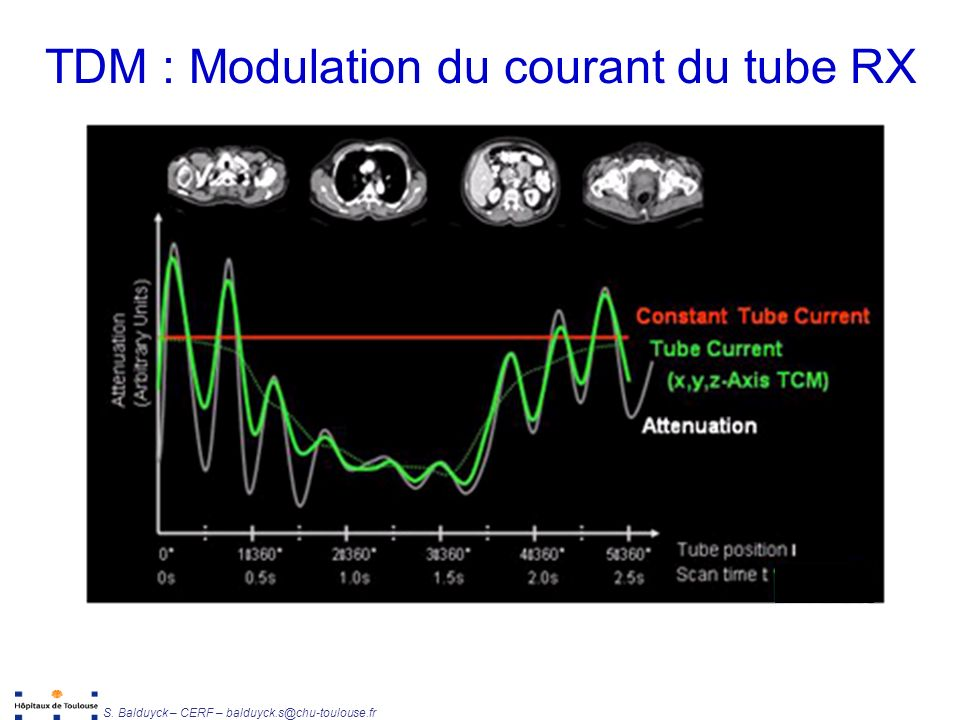 Unité de Radiophysique et Radioprotection S. Balduyck – CERF – balduyck.s@chu-toulouse.fr TDM : Modulation du courant du tube RX