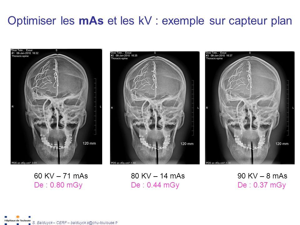 Unité de Radiophysique et Radioprotection S. Balduyck – CERF – balduyck.s@chu-toulouse.fr 90 KV – 8 mAs De : 0.37 mGy 80 KV – 14 mAs De : 0.44 mGy 60