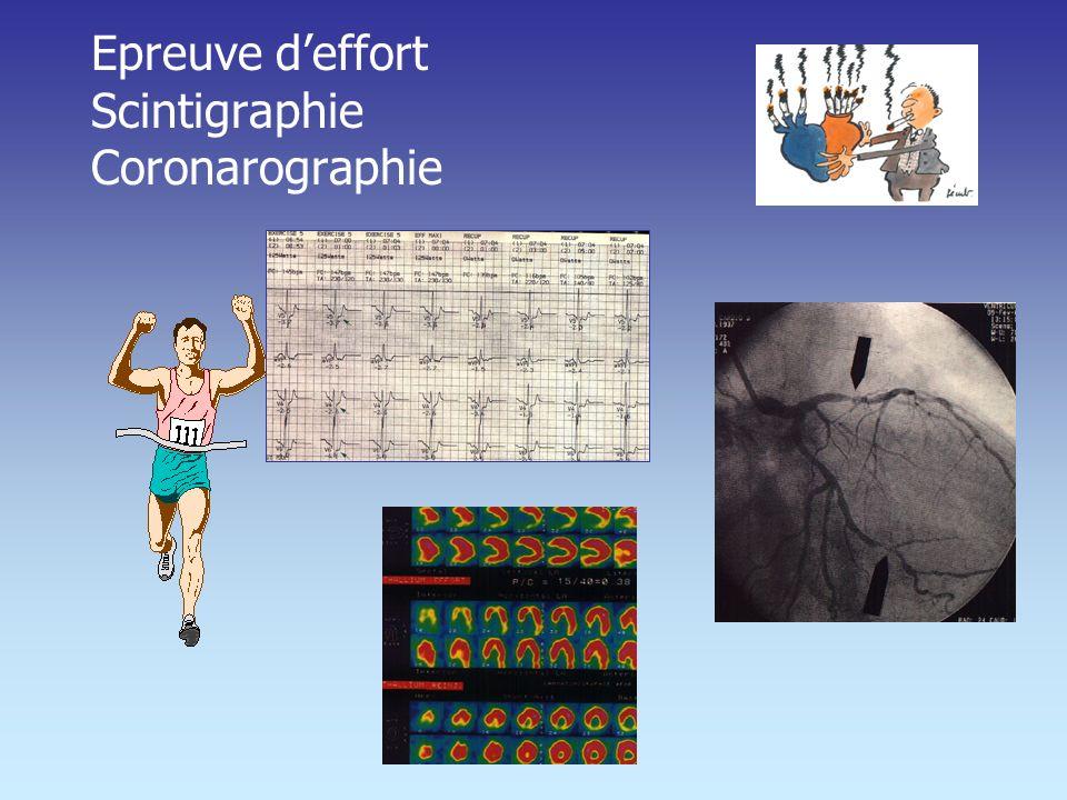 Epreuve deffort Scintigraphie Coronarographie