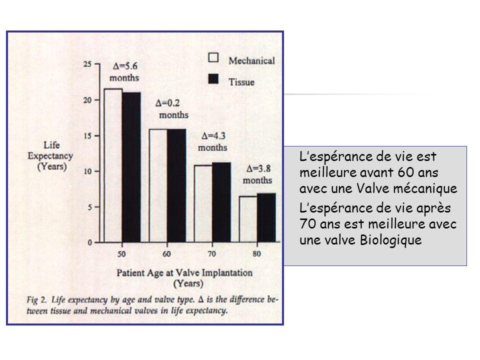 Le croissement des courbes entre biologiques et mécaniques se fait entre 60 et 65 ans