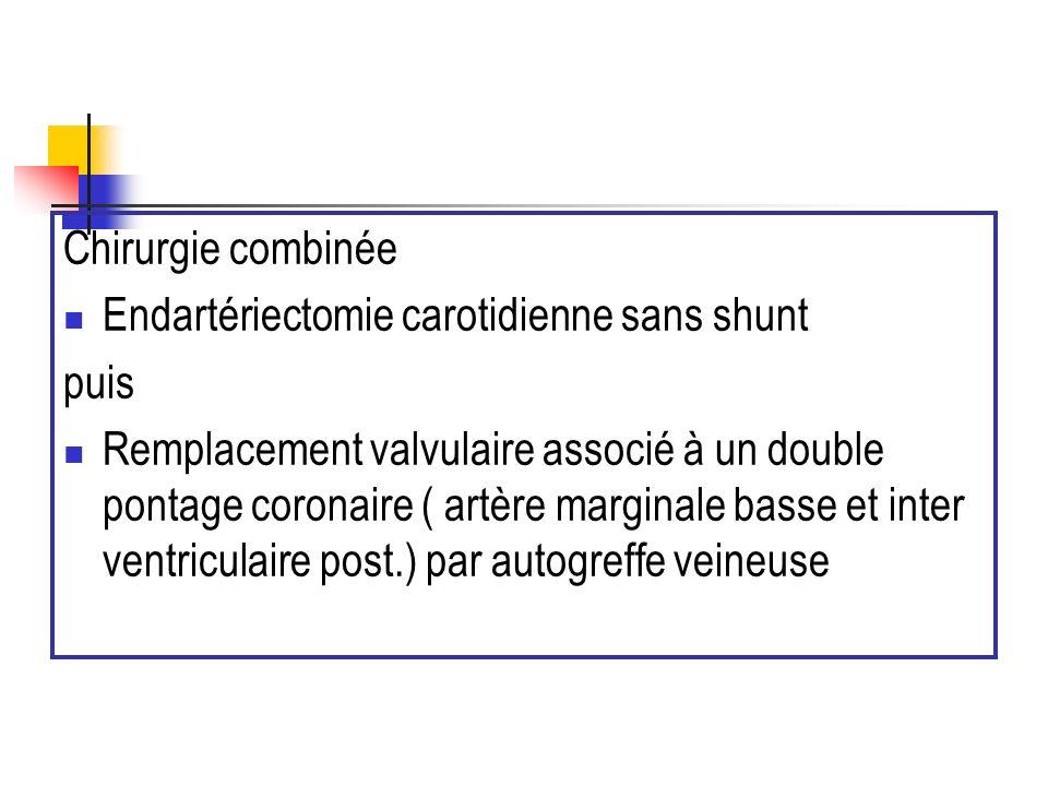 Chirurgie combinée Endartériectomie carotidienne sans shunt puis Remplacement valvulaire associé à un double pontage coronaire ( artère marginale bass