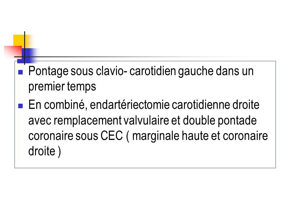 Pontage sous clavio- carotidien gauche dans un premier temps En combiné, endartériectomie carotidienne droite avec remplacement valvulaire et double p