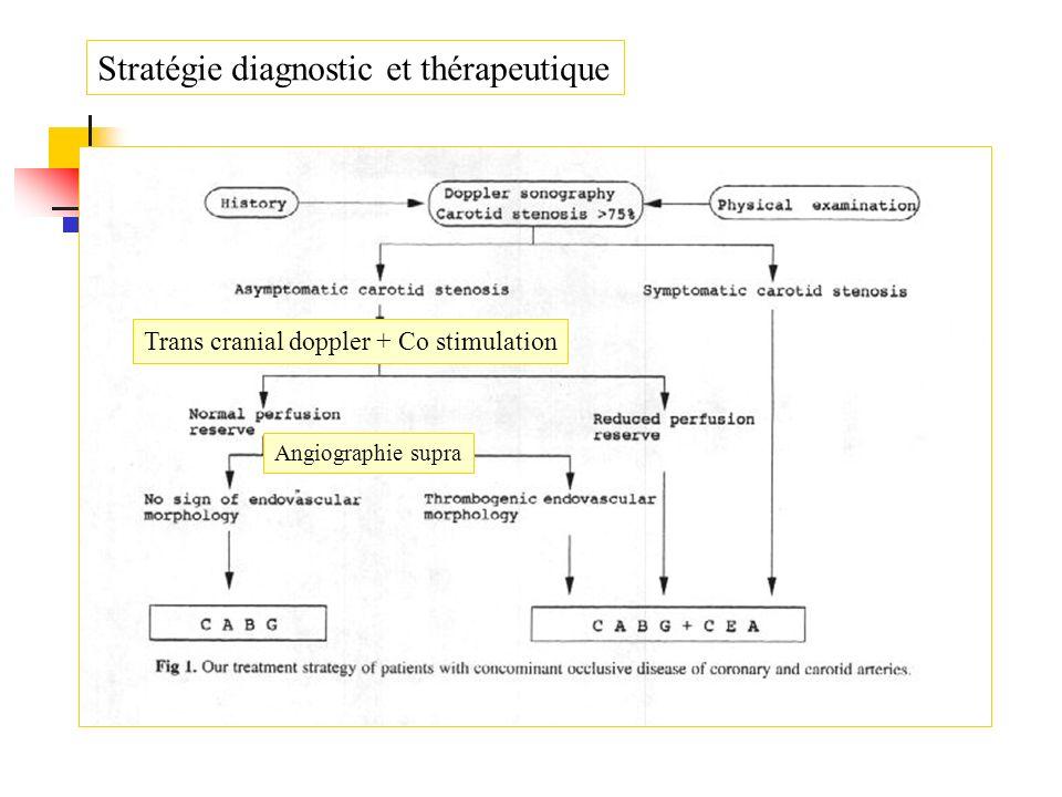 Stratégie diagnostic et thérapeutique Angiographie supra Trans cranial doppler + Co stimulation