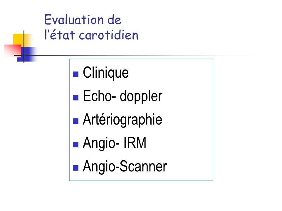 Evaluation de létat carotidien Clinique Echo- doppler Artériographie Angio- IRM Angio-Scanner