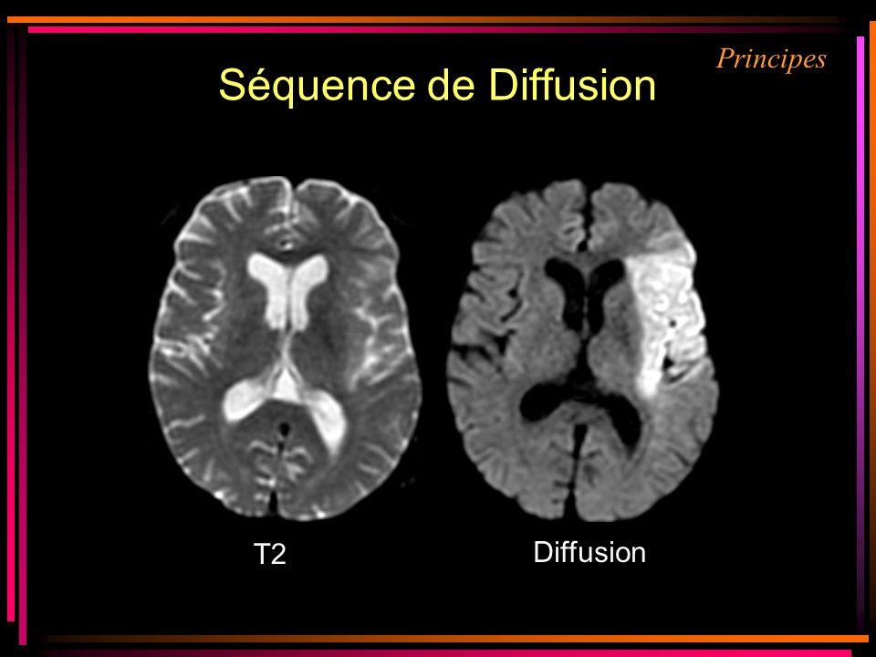 Séquence de Diffusion T2 Diffusion Principes
