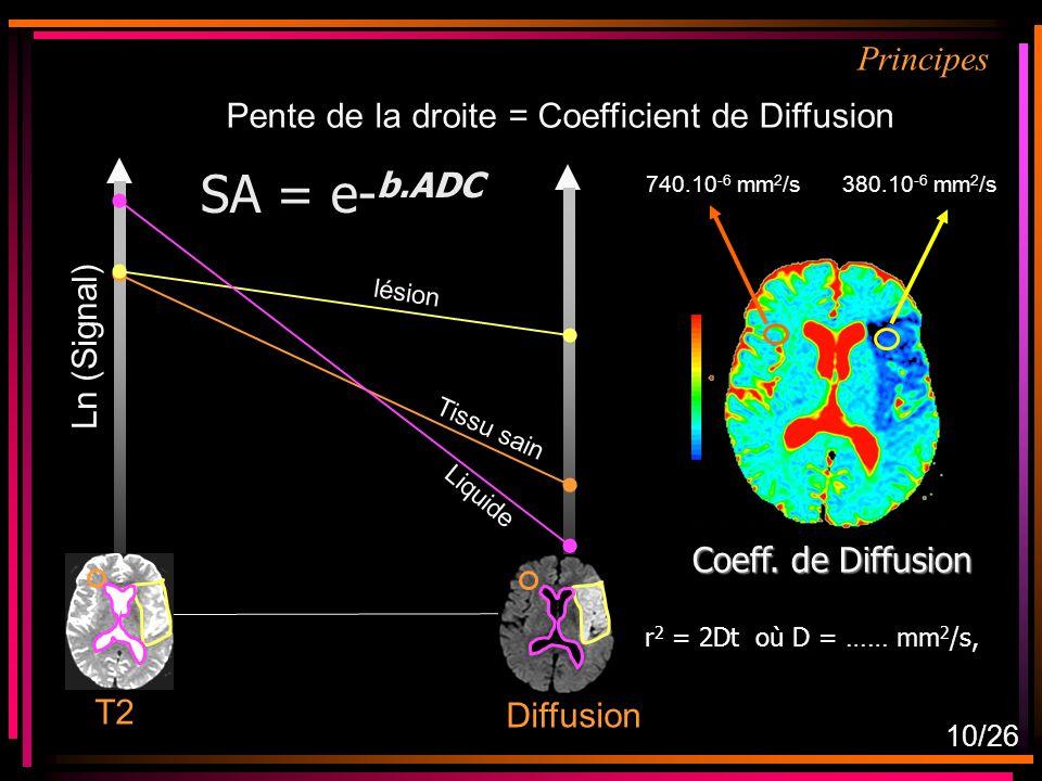 Ln (Signal) Tissu sain T2 Liquide lésion Diffusion Pente de la droite = Coefficient de Diffusion Coeff.