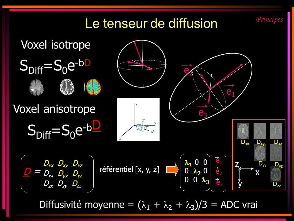 Le tenseur de diffusion Voxel isotrope S Diff =S 0 e -bD référentiel [x, y, z] 1 0 0 0 2 0 0 0 3 e1e1 e3e3 e2e2 D =D = D xx D xy D xz D yx D yy D yz D zx D zy D zz Diffusivité moyenne = ( 1 + 2 + 3 )/3 = ADC vrai Voxel anisotrope S Diff =S 0 e -b D e1e1 e2e2 e3e3 x y z D xx D xy D xz D yz D yy D zz Principes