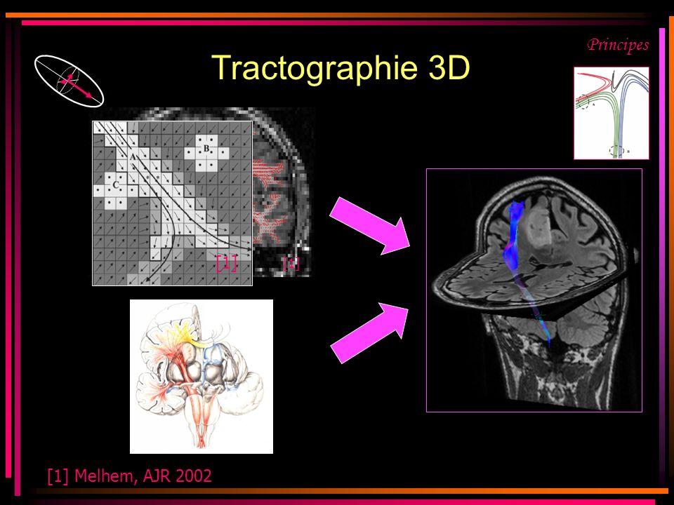 [1] Melhem, AJR 2002 Principes [1] Tractographie 3D [1]