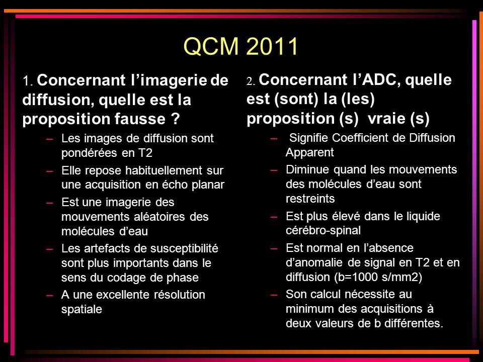 QCM 2011 1. Concernant limagerie de diffusion, quelle est la proposition fausse ? –Les images de diffusion sont pondérées en T2 –Elle repose habituell