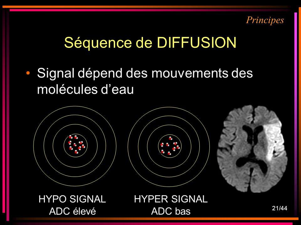 21/44 Séquence de DIFFUSION Signal dépend des mouvements des molécules deau HYPO SIGNAL ADC élevé HYPER SIGNAL ADC bas Principes