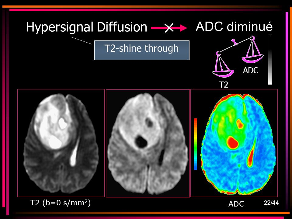 22/44 ADC diminué Hypersignal Diffusion T2-shine through T2 ADC T2 (b=0 s/mm 2 )