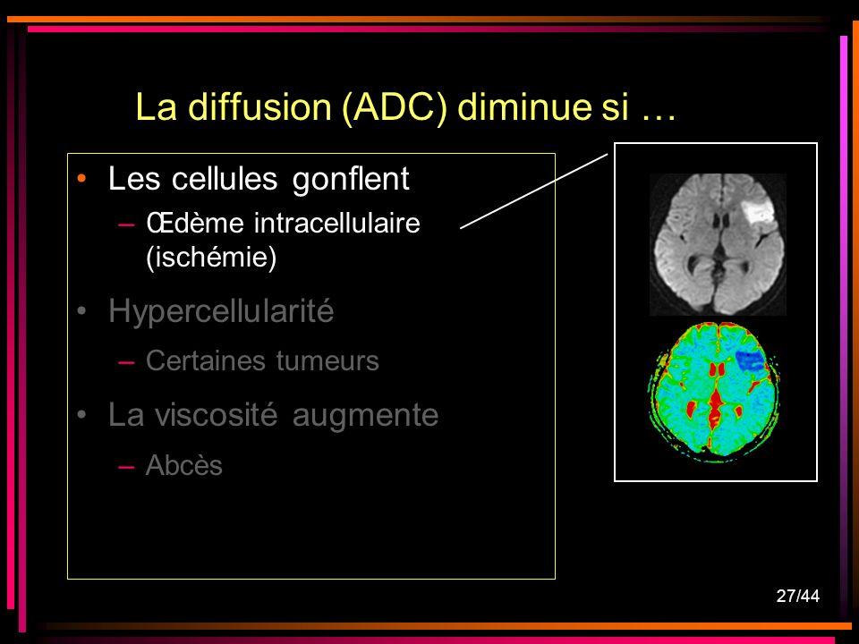 27/44 Les cellules gonflent –Œdème intracellulaire (ischémie) Hypercellularité –Certaines tumeurs La viscosité augmente –Abcès La diffusion (ADC) diminue si …