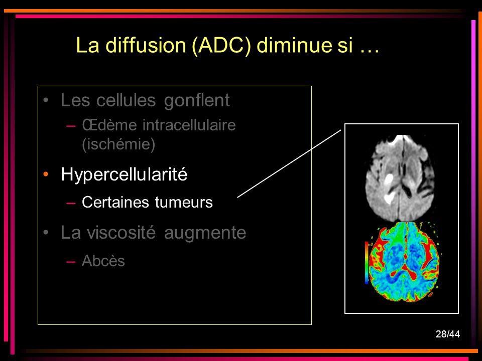 28/44 Les cellules gonflent –Œdème intracellulaire (ischémie) Hypercellularité –Certaines tumeurs La viscosité augmente –Abcès La diffusion (ADC) dimi