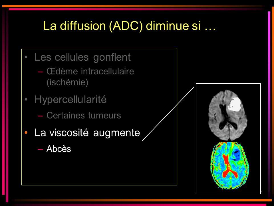 29/44 Les cellules gonflent –Œdème intracellulaire (ischémie) Hypercellularité –Certaines tumeurs La viscosité augmente –Abcès La diffusion (ADC) dimi