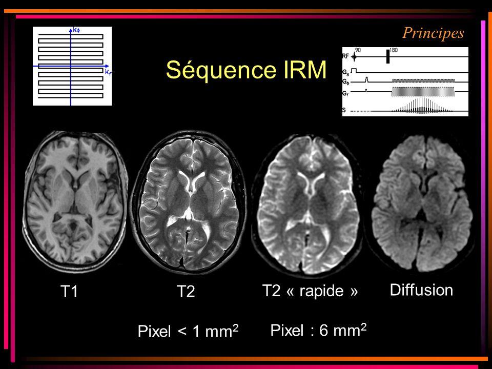 Séquence IRM T2 T2 « rapide » Pixel < 1 mm 2 T1 Diffusion Pixel : 6 mm 2 Principes