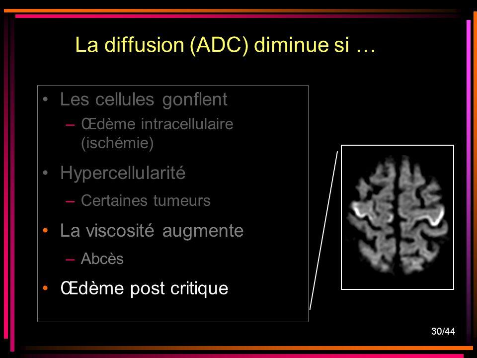 30/44 Les cellules gonflent –Œdème intracellulaire (ischémie) Hypercellularité –Certaines tumeurs La viscosité augmente –Abcès Œdème post critique La diffusion (ADC) diminue si …