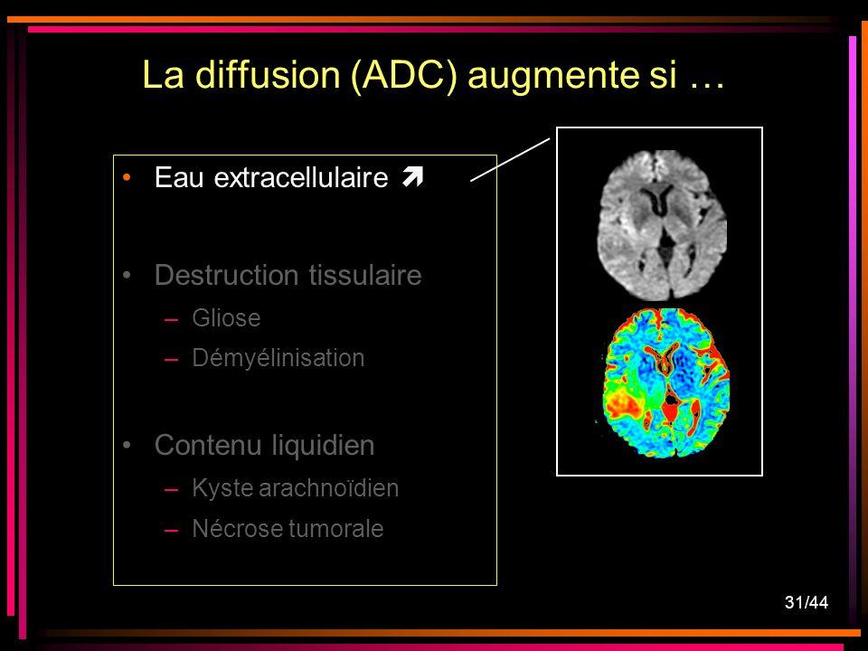 31/44 Eau extracellulaire Destruction tissulaire –Gliose –Démyélinisation Contenu liquidien –Kyste arachnoïdien –Nécrose tumorale La diffusion (ADC) augmente si …