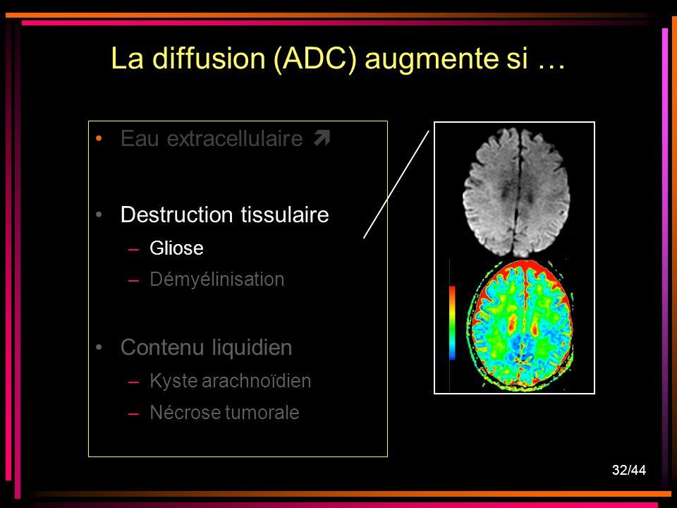 32/44 Eau extracellulaire Destruction tissulaire –Gliose –Démyélinisation Contenu liquidien –Kyste arachnoïdien –Nécrose tumorale La diffusion (ADC) augmente si …