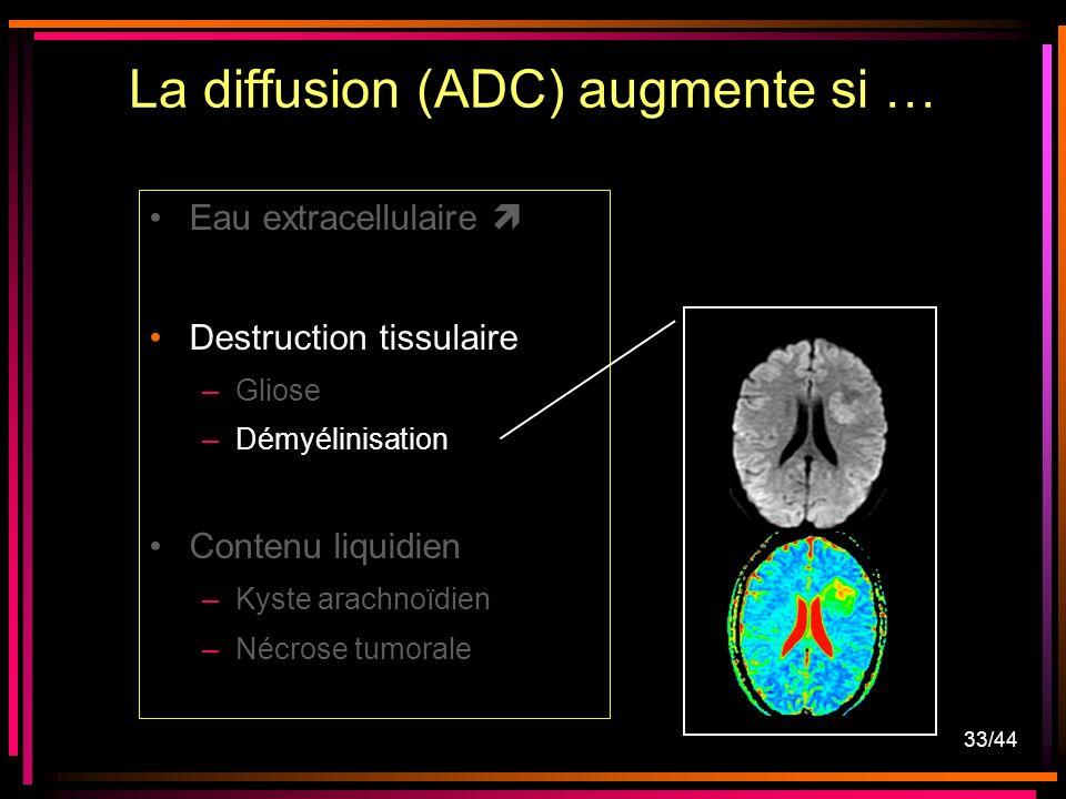 33/44 Eau extracellulaire Destruction tissulaire –Gliose –Démyélinisation Contenu liquidien –Kyste arachnoïdien –Nécrose tumorale La diffusion (ADC) augmente si …
