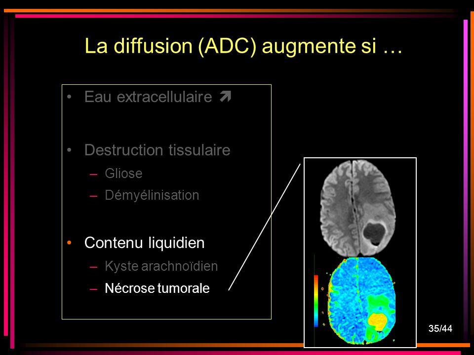 35/44 Eau extracellulaire Destruction tissulaire –Gliose –Démyélinisation Contenu liquidien –Kyste arachnoïdien –Nécrose tumorale La diffusion (ADC) augmente si …