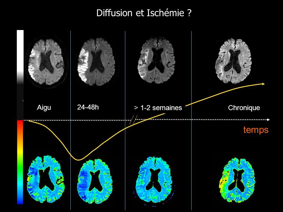 temps 24-48h Aigu Chronique Diffusion et Ischémie ? > 1-2 semaines