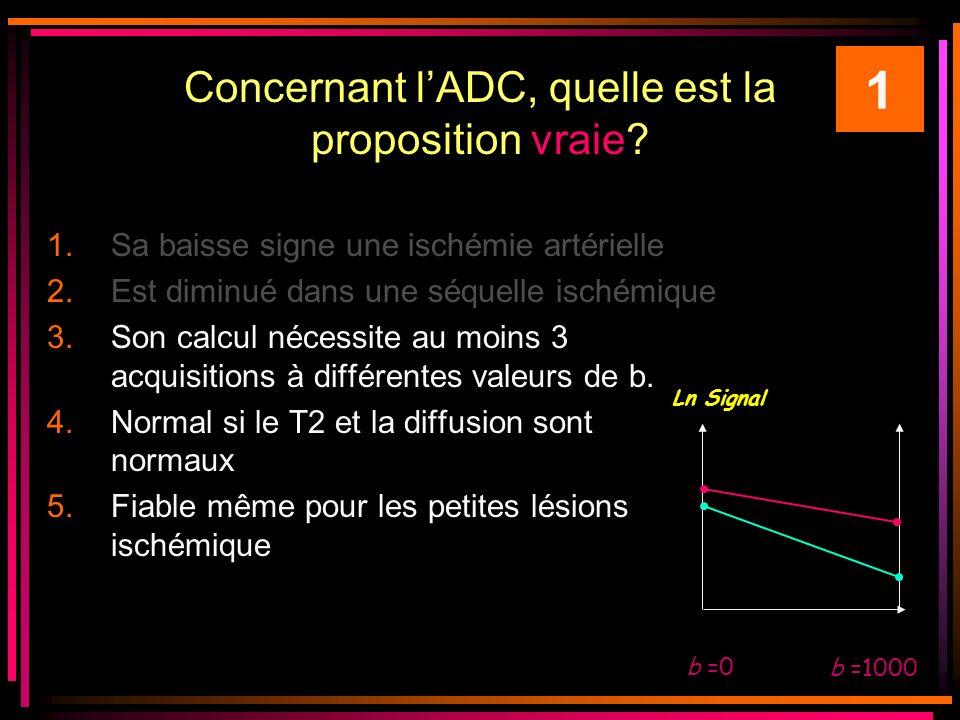 Concernant lADC, quelle est la proposition vraie? 1.Sa baisse signe une ischémie artérielle 2.Est diminué dans une séquelle ischémique 3.Son calcul né