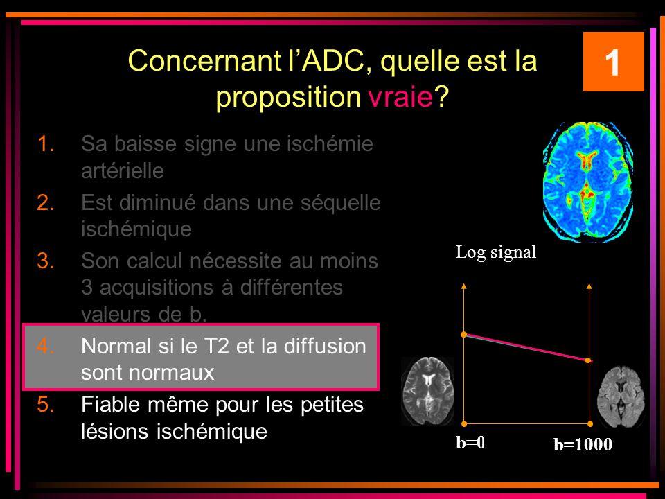 Concernant lADC, quelle est la proposition vraie.