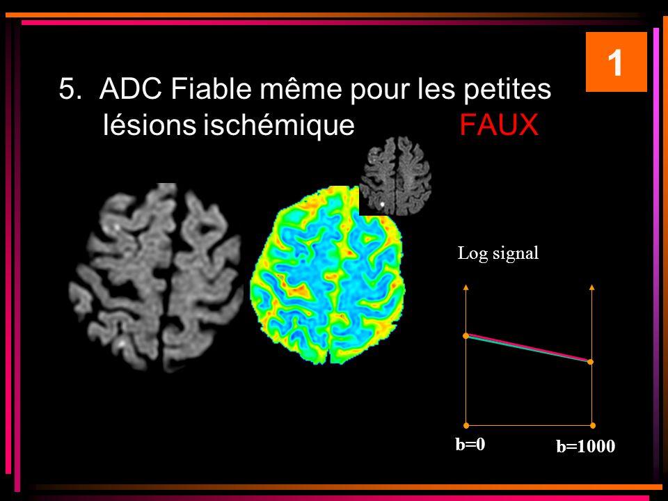 5. ADC Fiable même pour les petites lésions ischémiqueFAUX 1 Log signal b=0 b=1000 ADC