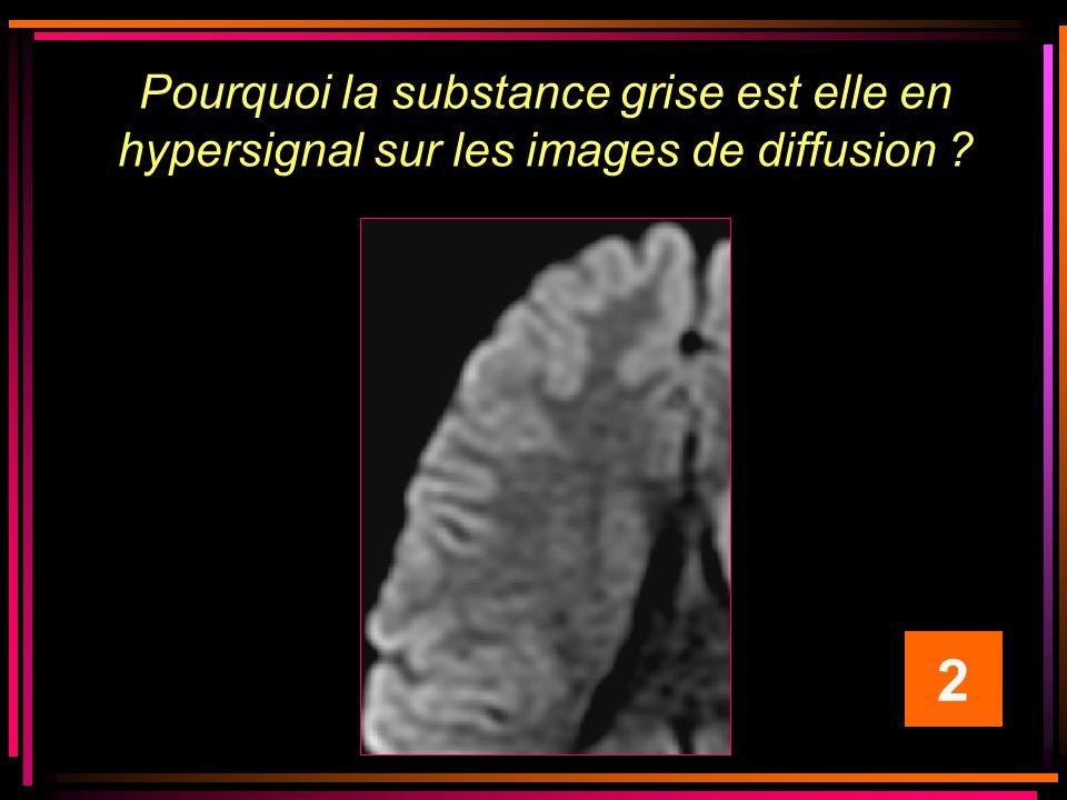 Pourquoi la substance grise est elle en hypersignal sur les images de diffusion ? 2