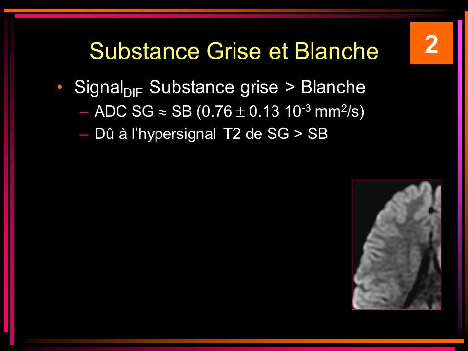 Substance Grise et Blanche Signal DIF Substance grise > Blanche –ADC SG SB (0.76 0.13 10 -3 mm 2 /s) –Dû à lhypersignal T2 de SG > SB 2