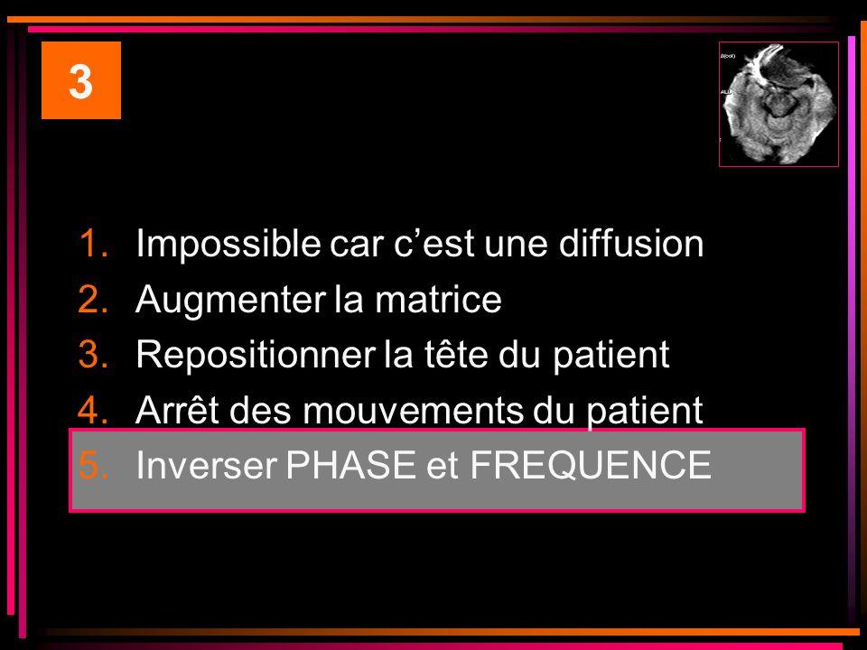 1.Impossible car cest une diffusion 2.Augmenter la matrice 3.Repositionner la tête du patient 4.Arrêt des mouvements du patient 5.Inverser PHASE et FREQUENCE 3