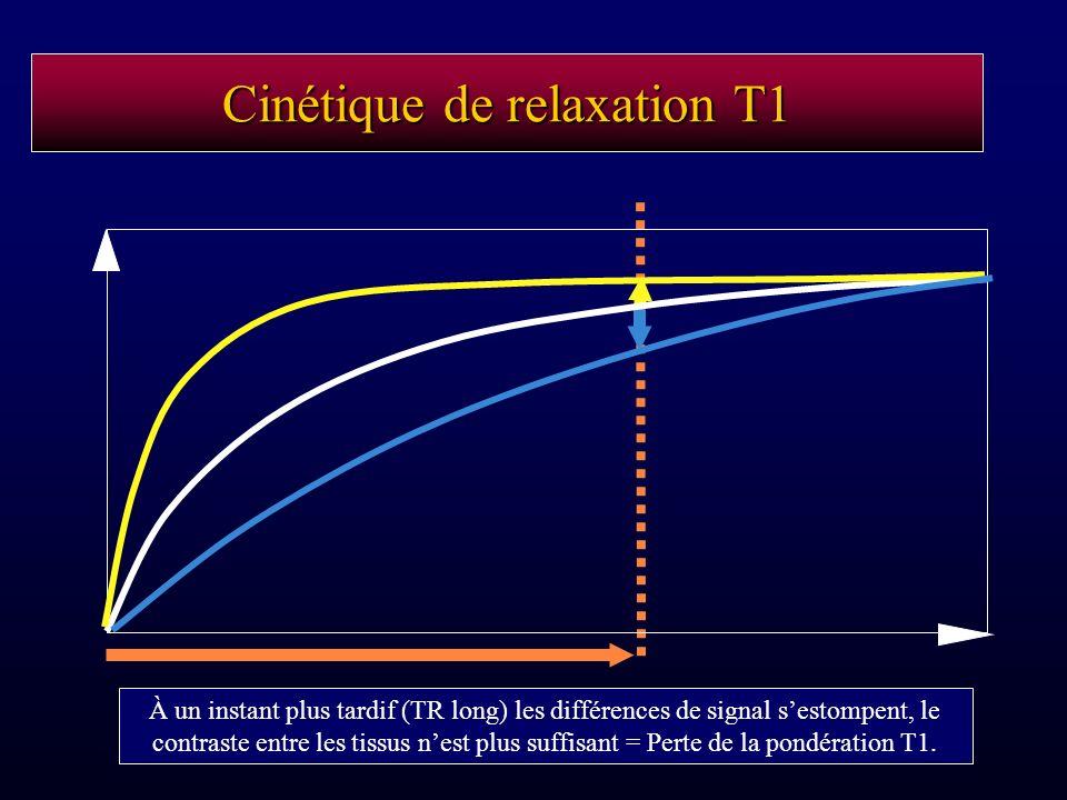 À un instant plus tardif (TR long) les différences de signal sestompent, le contraste entre les tissus nest plus suffisant = Perte de la pondération T