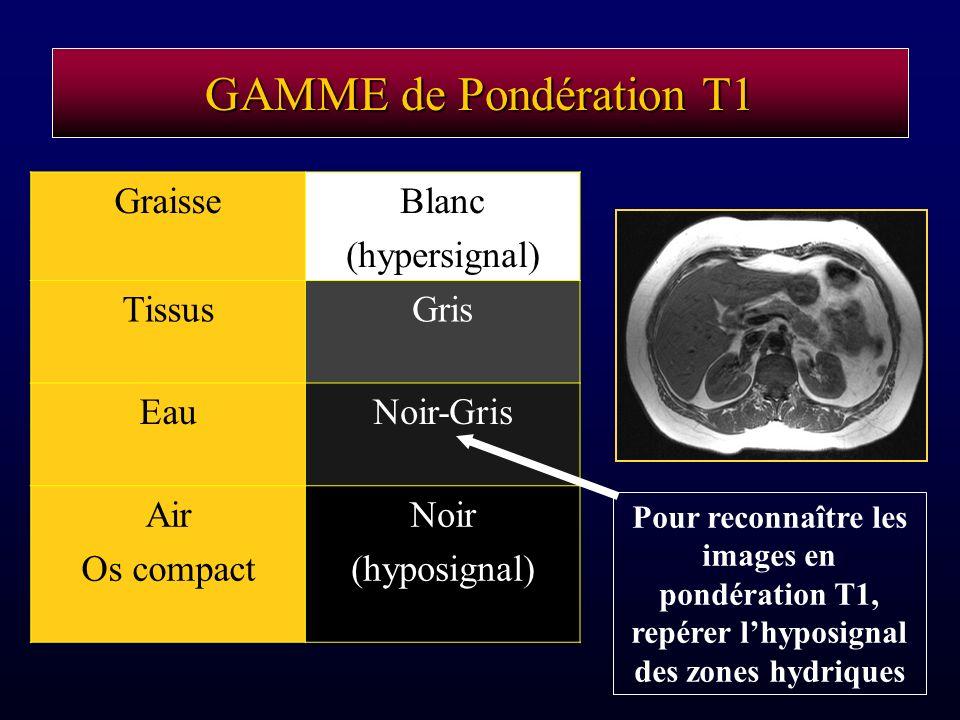 GAMME de Pondération T1 GraisseBlanc (hypersignal) TissusGris EauNoir-Gris Air Os compact Noir (hyposignal) Pour reconnaître les images en pondération