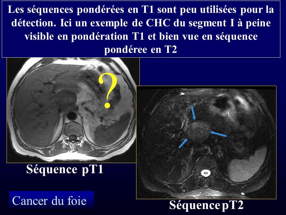 Cancer du foie Séquence pT1 Séquence pT2 Les séquences pondérées en T1 sont peu utilisées pour la détection. Ici un exemple de CHC du segment I à pein