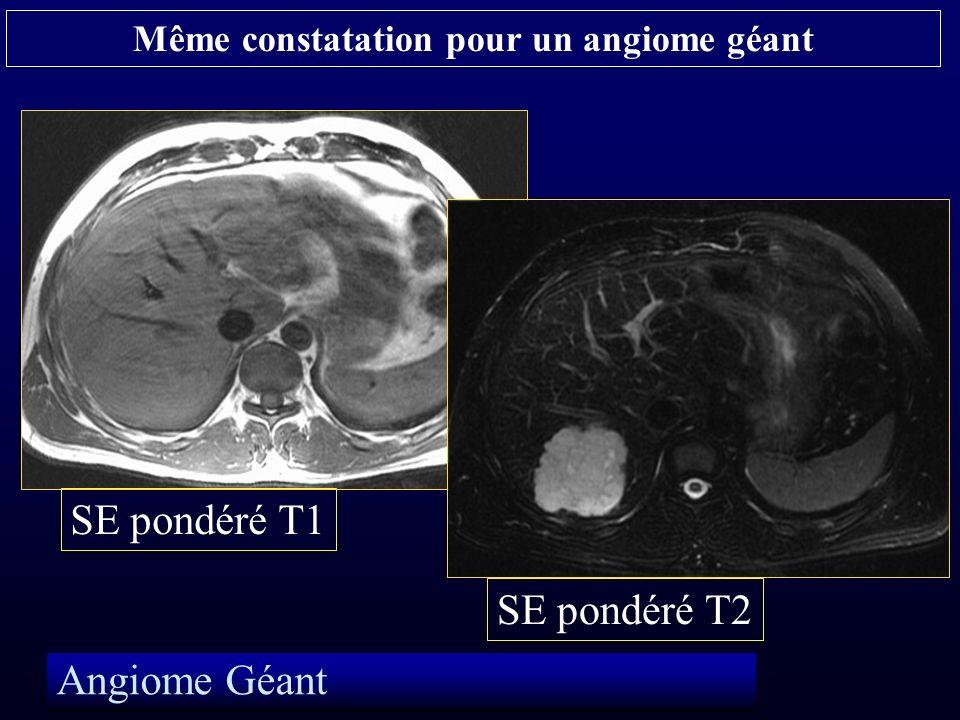 Angiome Géant SE pondéré T1 SE pondéré T2 Même constatation pour un angiome géant
