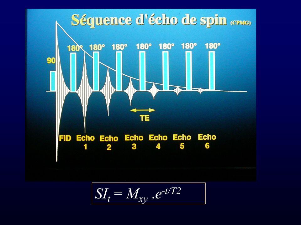 SI t = M xy.e -t/T2
