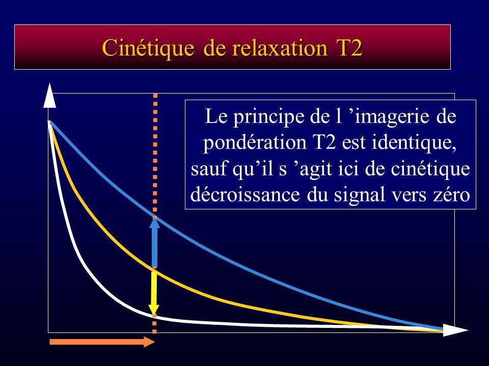 Cinétique de relaxation T2 Le principe de l imagerie de pondération T2 est identique, sauf quil s agit ici de cinétique décroissance du signal vers zé