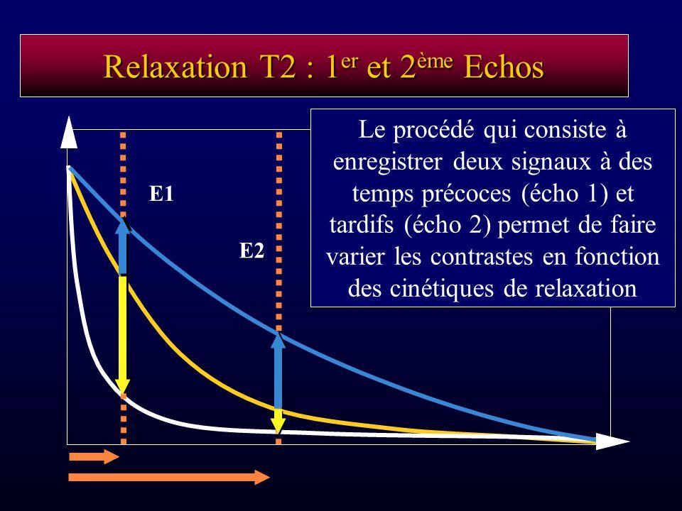 Relaxation T2 : 1 er et 2 ème Echos E1 E2 Le procédé qui consiste à enregistrer deux signaux à des temps précoces (écho 1) et tardifs (écho 2) permet