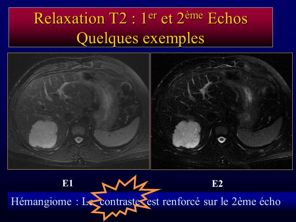 Relaxation T2 : 1 er et 2 ème Echos Quelques exemples E1 E2 Hémangiome : Le contraste est renforcé sur le 2ème écho