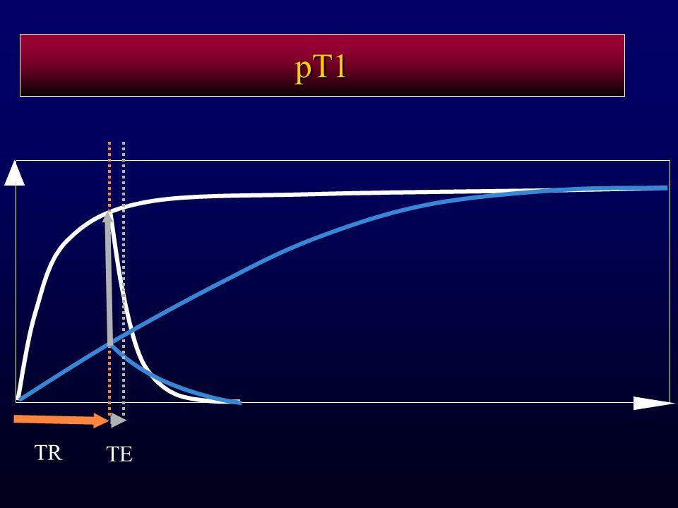pT1 TR TE