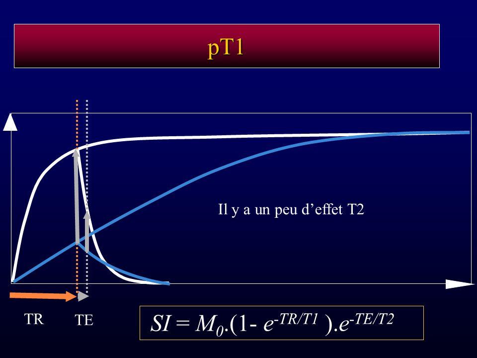 pT1 TR TE SI = M 0.(1- e -TR/T1 ).e -TE/T2 Il y a un peu deffet T2
